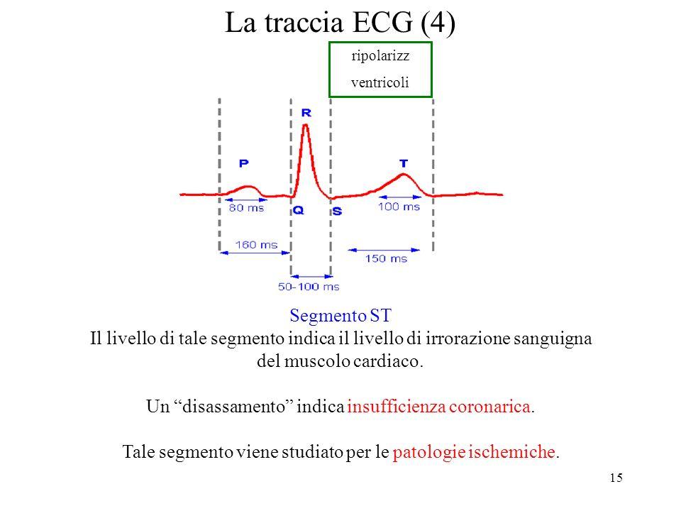 15 La traccia ECG (4) Segmento ST Il livello di tale segmento indica il livello di irrorazione sanguigna del muscolo cardiaco. Un disassamento indica