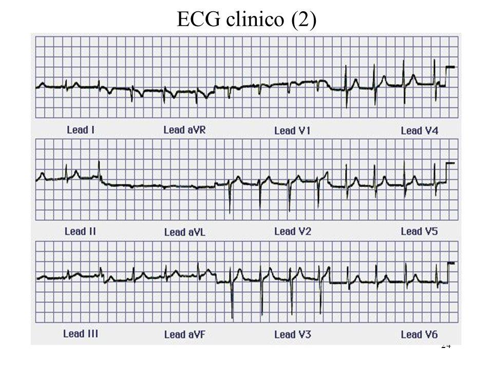 24 ECG clinico (2)