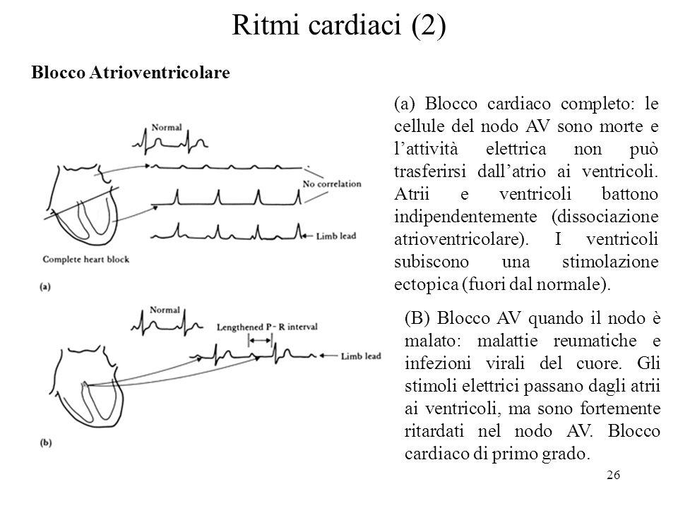 26 Ritmi cardiaci (2) (a) Blocco cardiaco completo: le cellule del nodo AV sono morte e lattività elettrica non può trasferirsi dallatrio ai ventricol