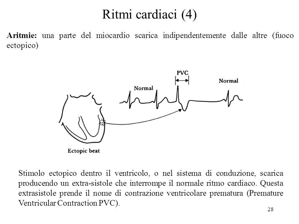 28 Ritmi cardiaci (4) Aritmie: una parte del miocardio scarica indipendentemente dalle altre (fuoco ectopico) Stimolo ectopico dentro il ventricolo, o