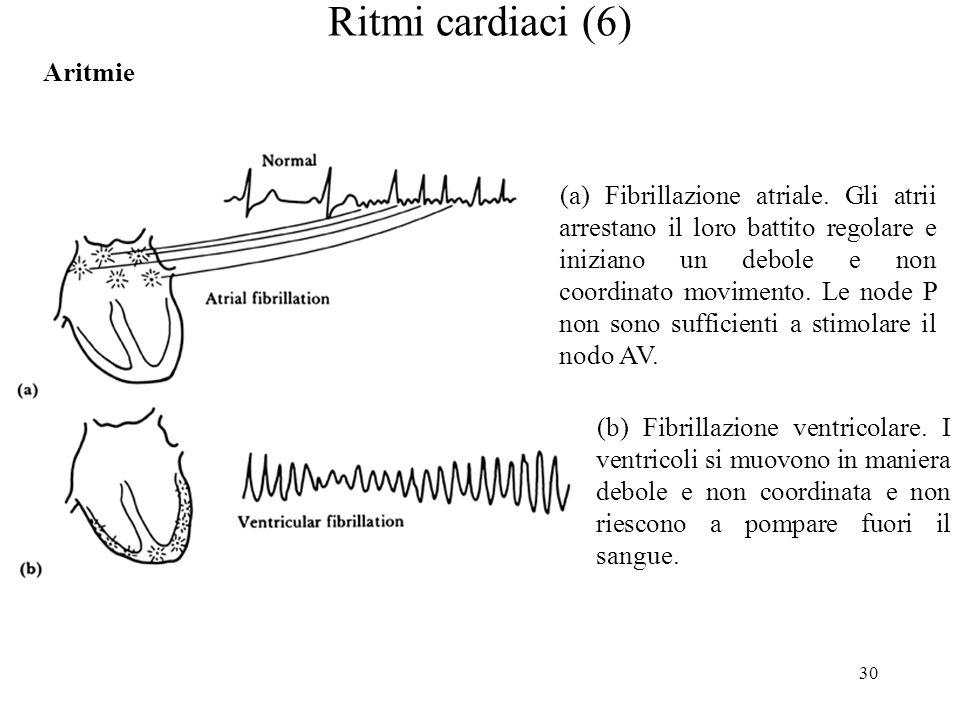 30 Ritmi cardiaci (6) Aritmie (a) Fibrillazione atriale. Gli atrii arrestano il loro battito regolare e iniziano un debole e non coordinato movimento.