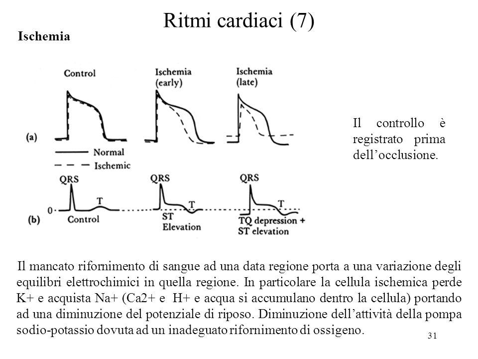 31 Il controllo è registrato prima dellocclusione. Ritmi cardiaci (7) Ischemia Il mancato rifornimento di sangue ad una data regione porta a una varia