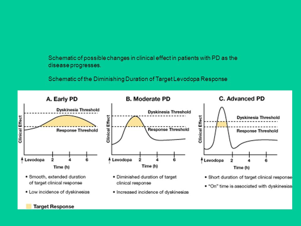 Schematic of possible changes in clinical effect in patients with PD as the disease progresses. Schematic of the Diminishing Duration of Target Levodo