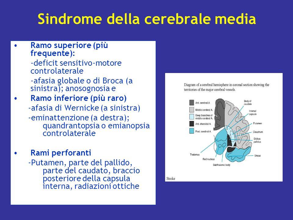 Sindrome della cerebrale media Ramo superiore (più frequente): -deficit sensitivo-motore controlaterale -afasia globale o di Broca (a sinistra); anoso