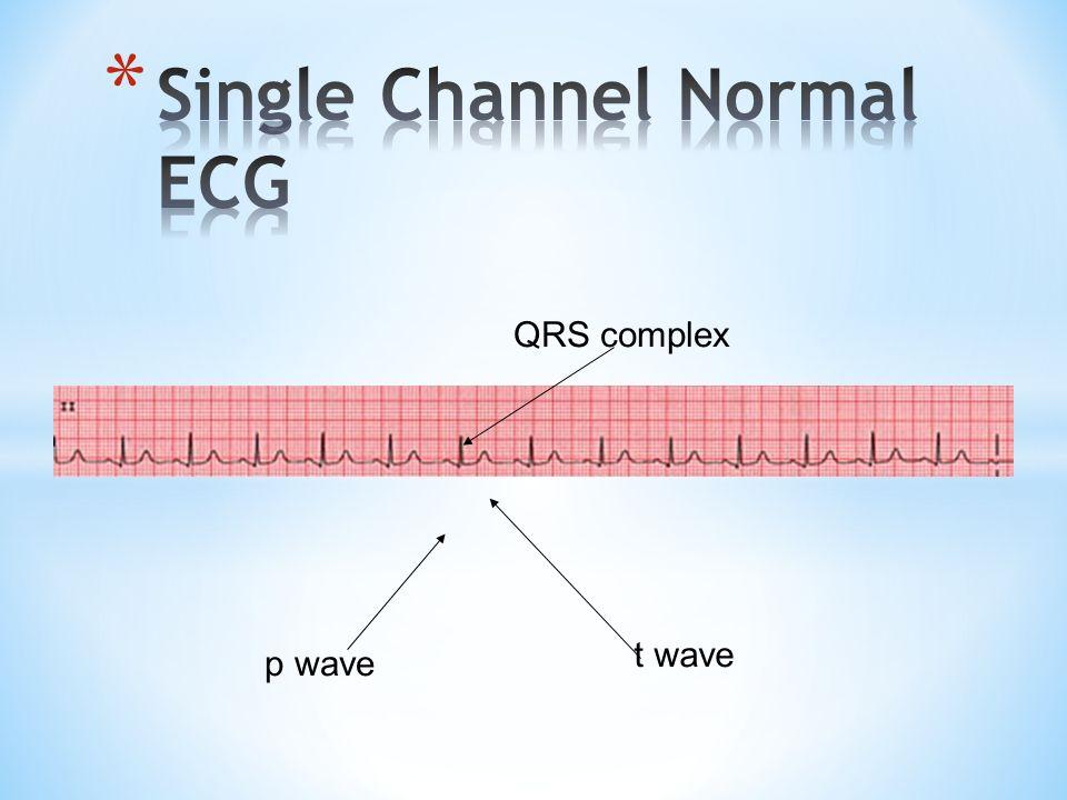 p wave QRS complex t wave