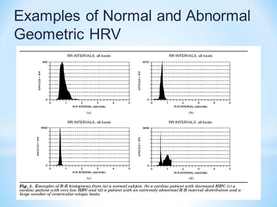 Examples of Normal and Abnormal Geometric HRV