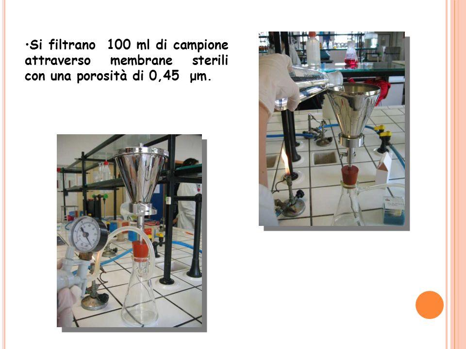 Si filtrano 100 ml di campione attraverso membrane sterili con una porosità di 0,45 μm.