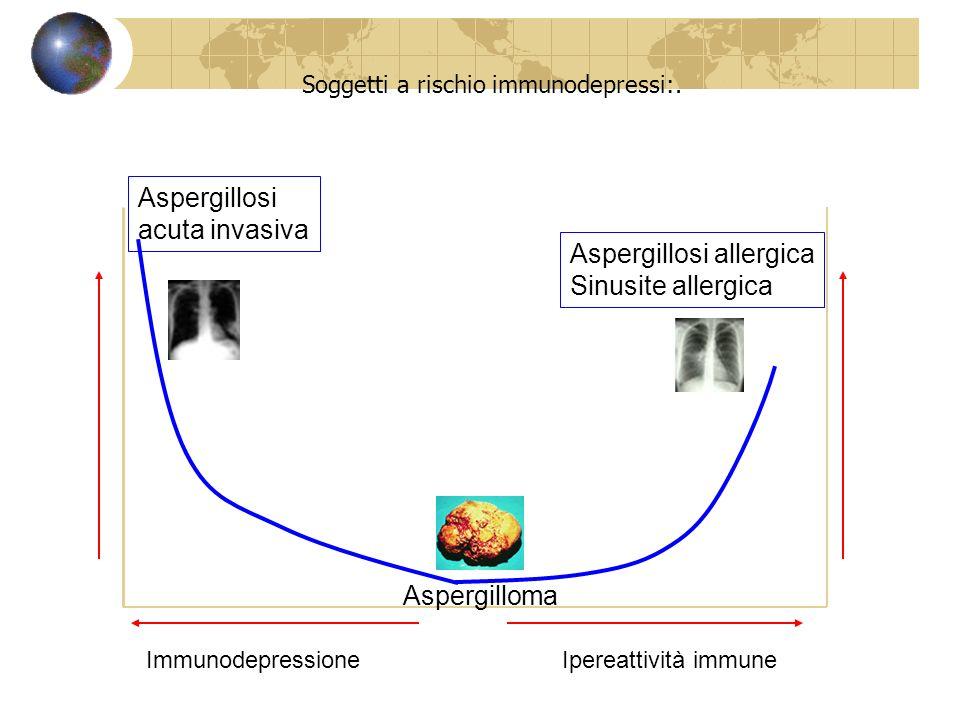 Aspergillus as a pathogen in man- Soggetti a rischio immunodepressi:. ImmunodepressioneIpereattività immune Aspergillosi acuta invasiva Aspergilloma A