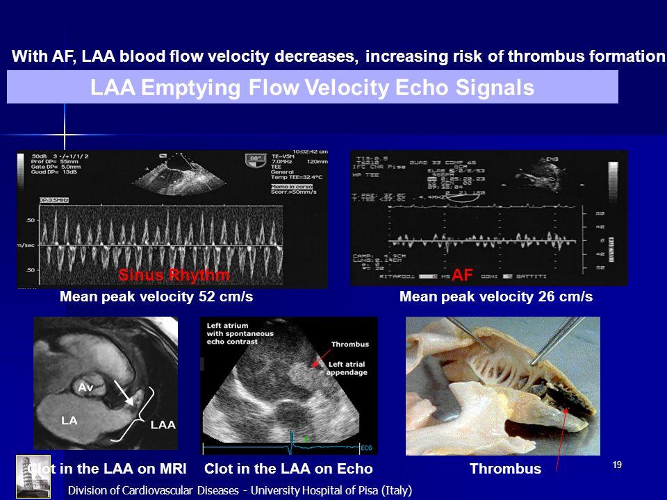Division of Cardiovascular Diseases - University Hospital of Pisa (Italy) 19 Hemodynamic Changes in LAA with AF AFSinus Rhythm Mean peak velocity 52 c