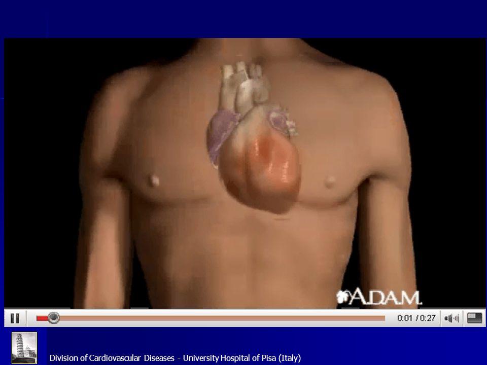 Division of Cardiovascular Diseases - University Hospital of Pisa (Italy) Fibrillazione atriale: sintomi 1 100 80 60 40 20 0 Sincope Intolleranzaallesercizio Pazienti (%) AnginaVertiginiDispnea 14 29 33 49 68 69 78 Affaticabilità Palpitazioni Levy S et al Alfa Study 1999 Nieeuwlaat R et al Euro Heart Survey 2005