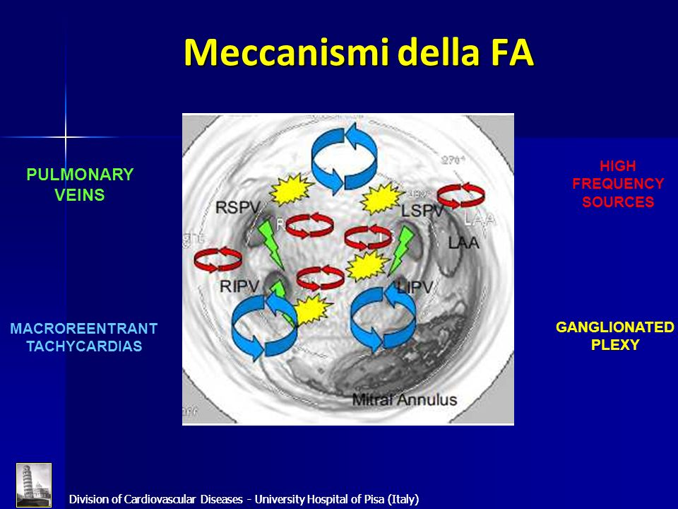 Division of Cardiovascular Diseases - University Hospital of Pisa (Italy) Meccanismi della FA Division of Cardiovascular Diseases - University Hospita