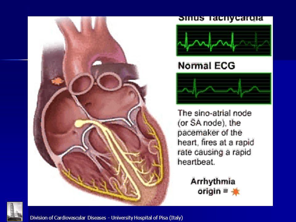 Division of Cardiovascular Diseases - University Hospital of Pisa (Italy) Bhargava M et al.