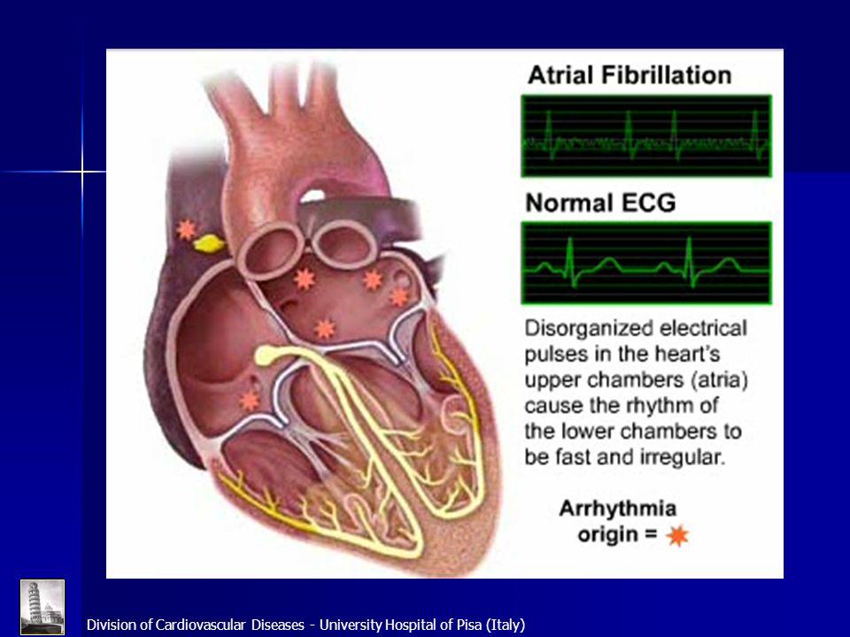 Definizione Aritmia caratterizzata da una rapida e disordinata attivazione elettrica degli atri (400-600 b/m) con perdita della contrazione atriale.