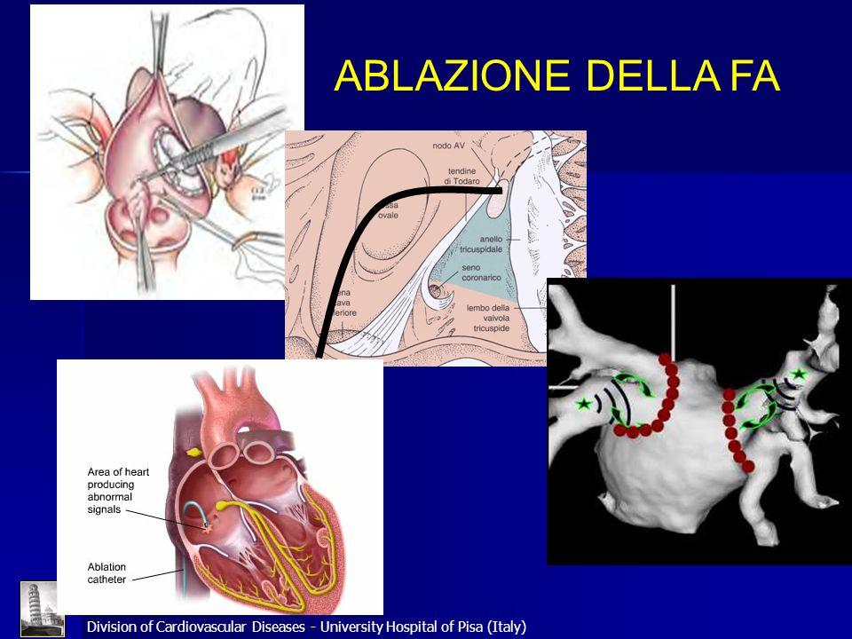 Division of Cardiovascular Diseases - University Hospital of Pisa (Italy) ABLAZIONE DELLA FA