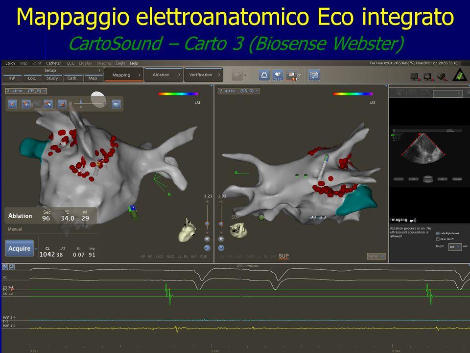 Mappaggio elettroanatomico Eco integrato CartoSound – Carto 3 (Biosense Webster)