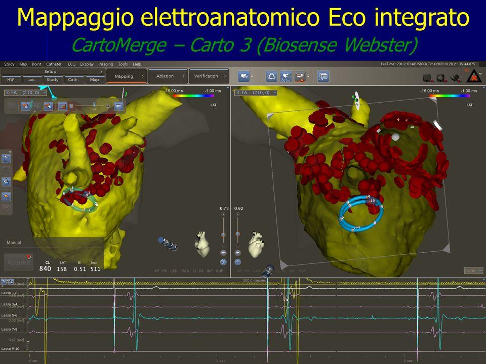 Division of Cardiovascular Diseases - University Hospital of Pisa (Italy) Mappaggio elettroanatomico Eco integrato CartoMerge – Carto 3 (Biosense Webs