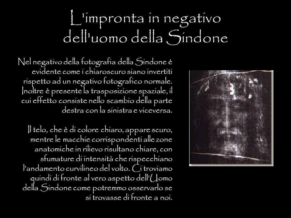 L'impronta in negativo dell'uomo della Sindone Nel negativo della fotografia della Sindone è evidente come i chiaroscuro siano invertiti rispetto ad u
