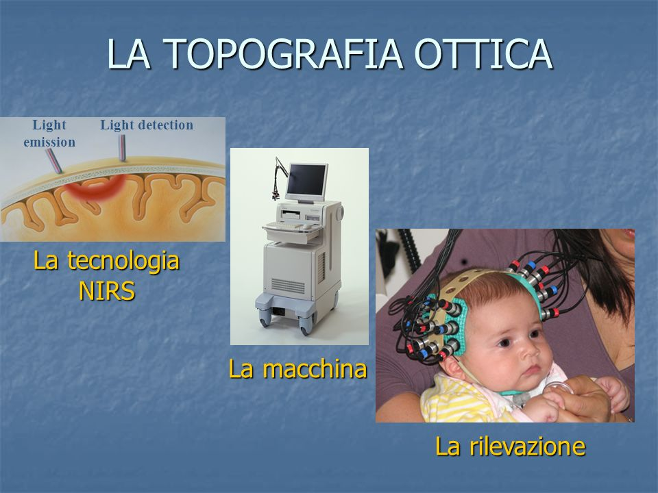 LA TOPOGRAFIA OTTICA Light emission Light detection La macchina La rilevazione La tecnologia NIRS