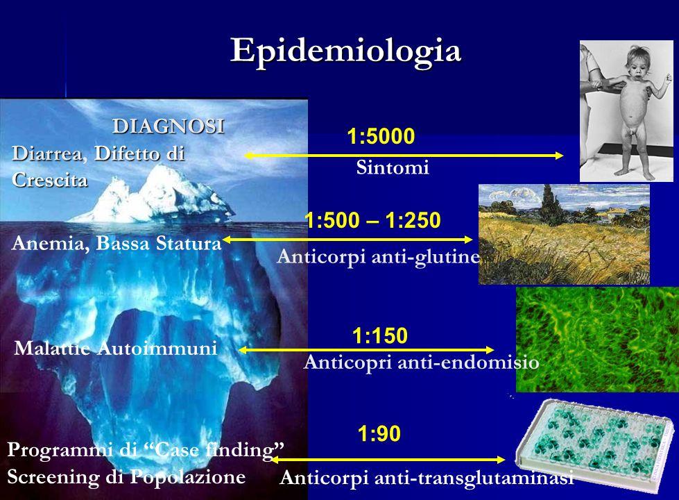 Sintomi 1:5000 Anticorpi anti-glutine 1:500 – 1:250 Anticopri anti-endomisio 1:150 Anticorpi anti-transglutaminasi 1:90 DIAGNOSI DIAGNOSI DiarreaDifet