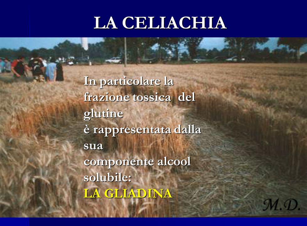 Definizione di celiachia (CD): E unenteropatia autoimmune che si manifesta in individui geneticamente predisposti in seguito al consumo di glutine. LA