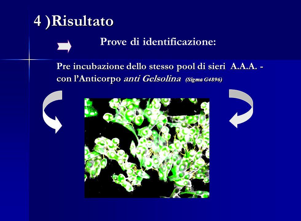 re incubazione dello stesso pool di sieri A.A.A. - con lAnticorpo anti Gelsolina (Sigma G4896) Pre incubazione dello stesso pool di sieri A.A.A. - con