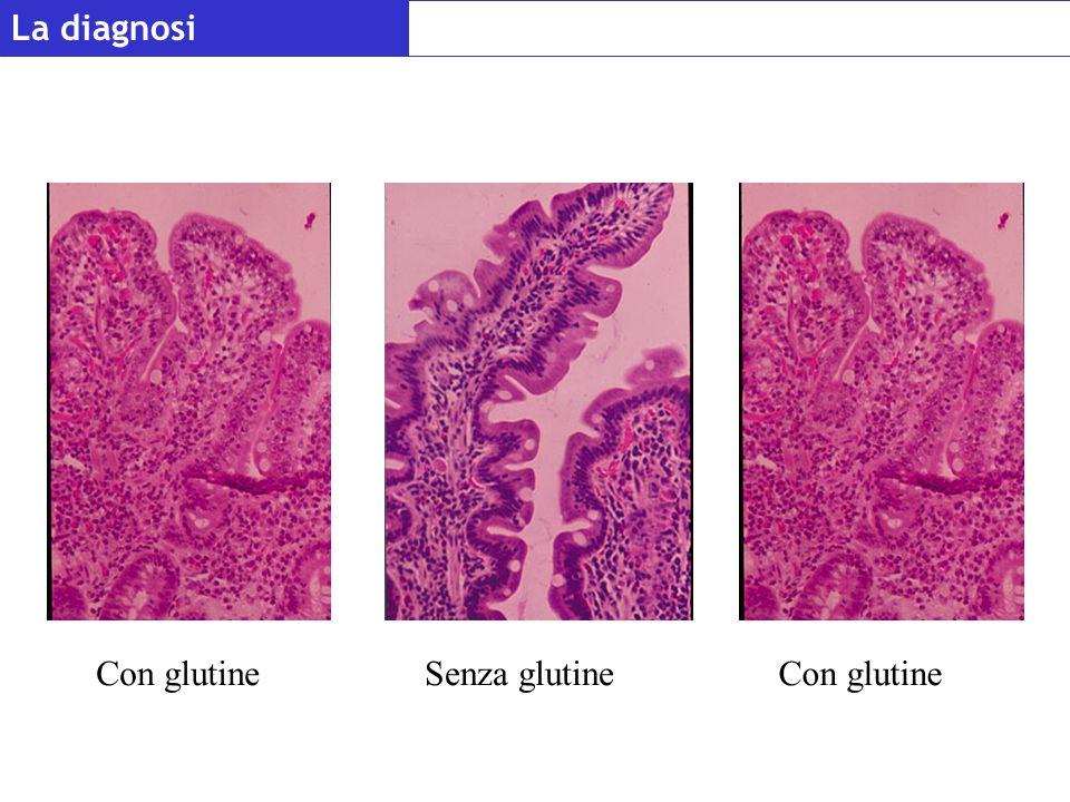 La diagnosi Con glutineSenza glutineCon glutine