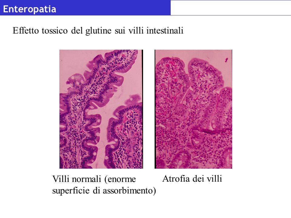 Enteropatia Atrofia dei villi Villi normali (enorme superficie di assorbimento) Effetto tossico del glutine sui villi intestinali