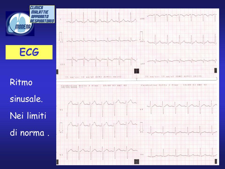 ECG Ritmo sinusale. Nei limiti di norma.