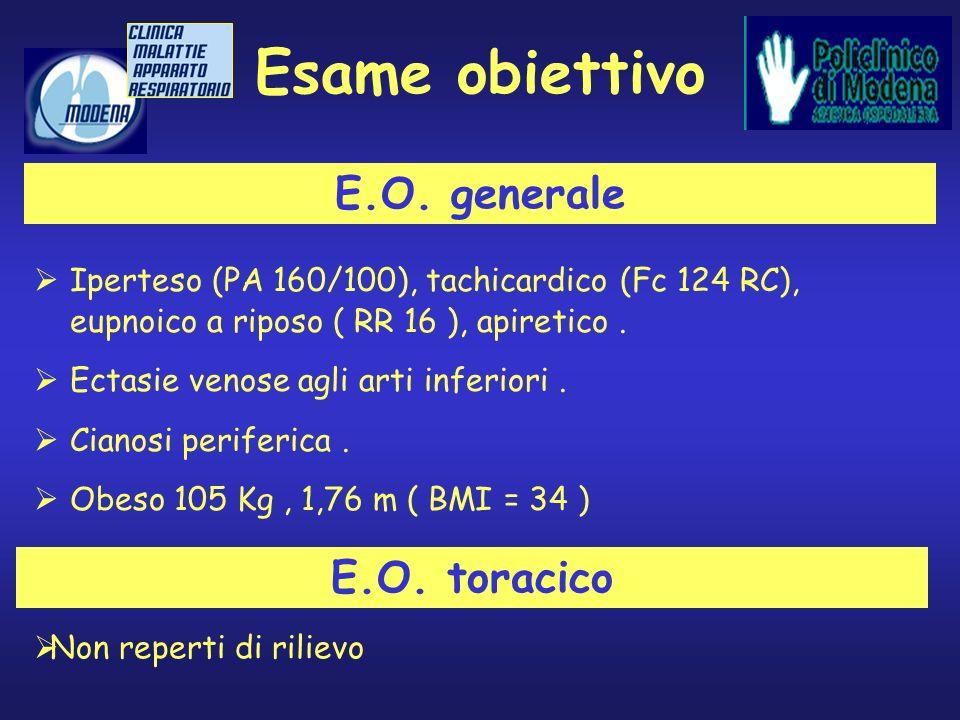 Esame obiettivo Iperteso (PA 160/100), tachicardico (Fc 124 RC), eupnoico a riposo ( RR 16 ), apiretico. Ectasie venose agli arti inferiori. Cianosi p