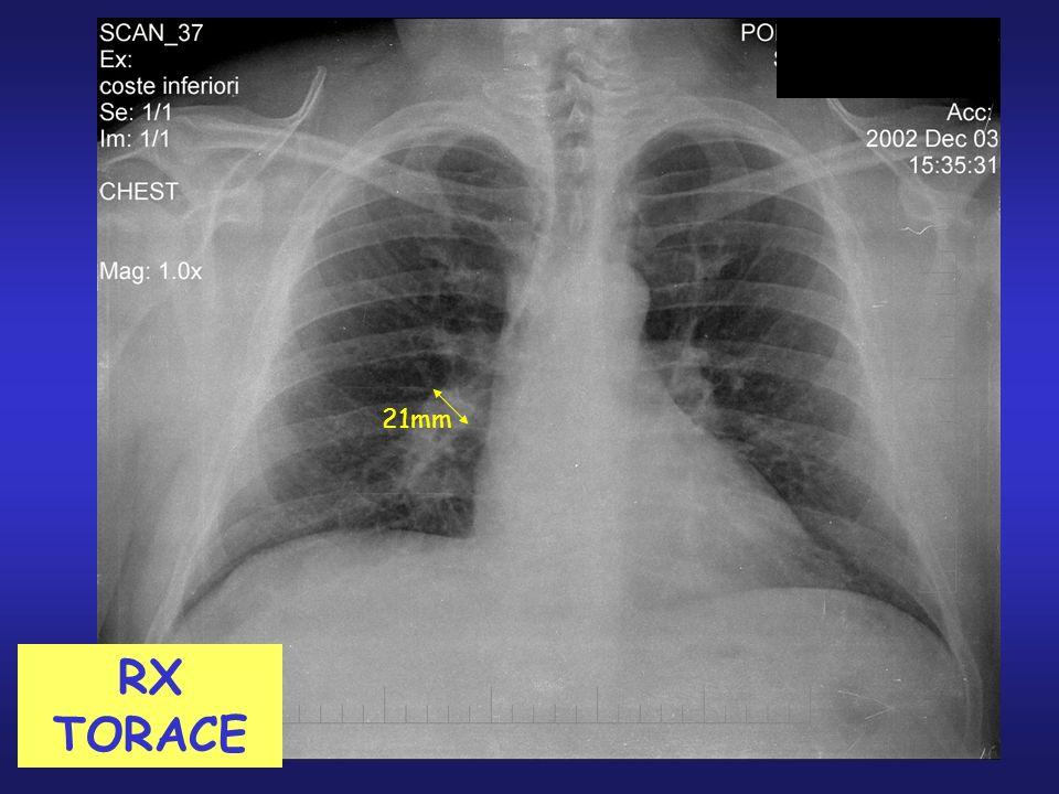Calcolo della probabilità di TEP linee guida 2001 Almeno uno di tre sintomi pertinenti ( dispnea, dolore, deliquio ) non spiegabili altrimenti Ed associato ad almeno uno dei tre segni radiografici ( amputazione dell arteria polmonare discendente, oligoemia, consolidamento parenchimale suggestivo di infarto polmonare ).