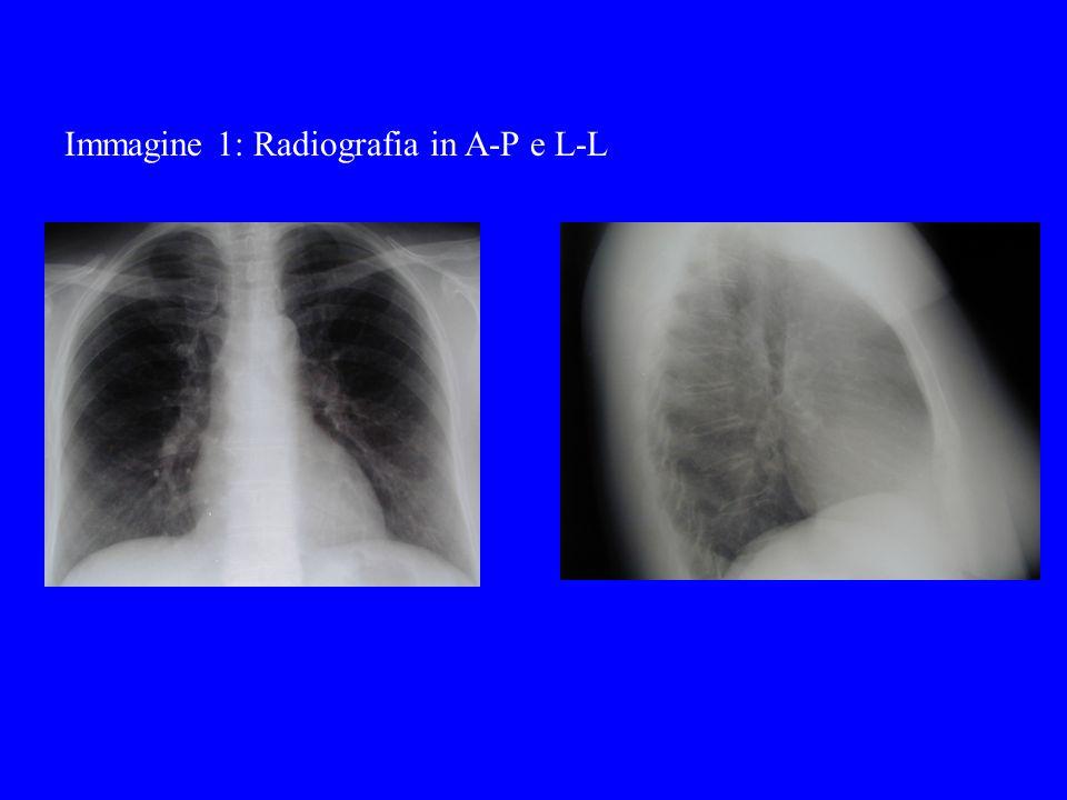 Emogasanalisi arteriosa ParametroValore PaO2 (mmHg)75 PaCO2 (mmHg) 42 pH7,39 HCO3-27 BE-0,3