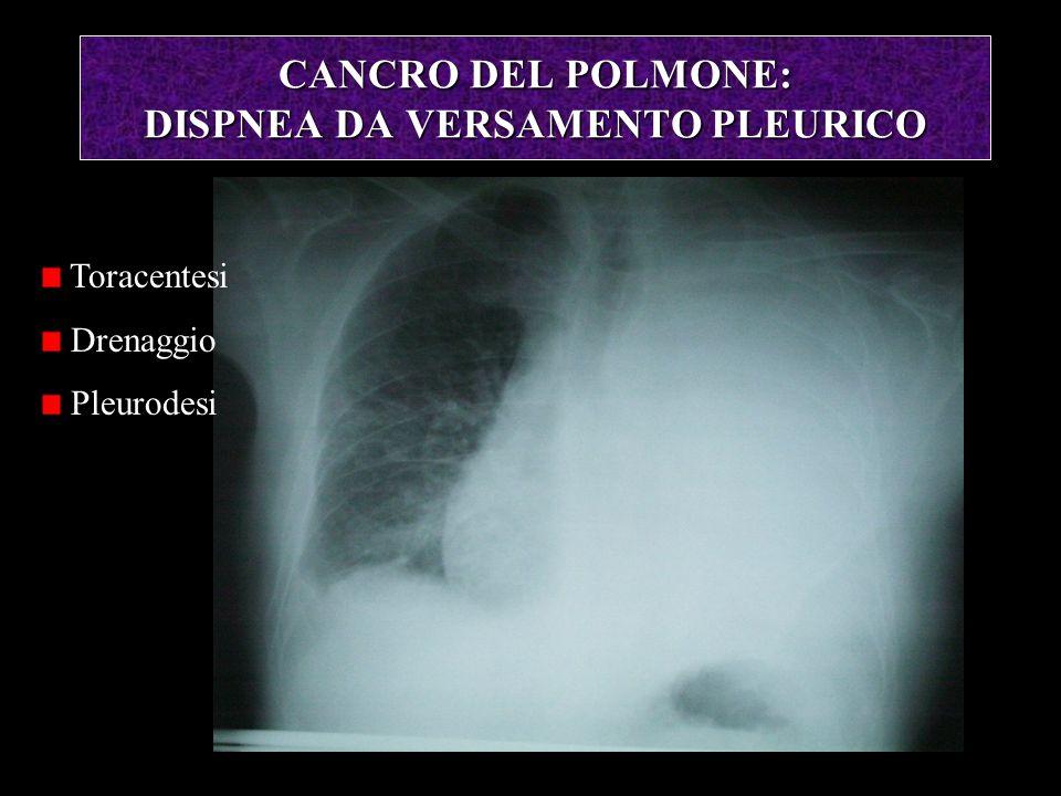 CANCRO DEL POLMONE: DISPNEA DA VERSAMENTO PLEURICO Toracentesi Drenaggio Pleurodesi
