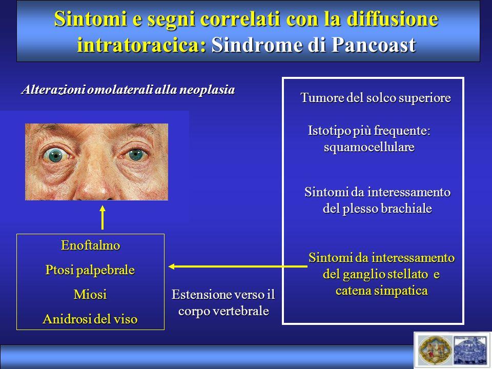 Sintomi e segni correlati con la diffusione intratoracica: Sindrome di Pancoast Tumore del solco superiore Istotipo più frequente: squamocellulare Sin