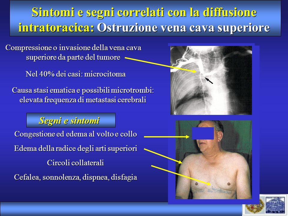 Sintomi e segni correlati con la diffusione intratoracica: Ostruzione vena cava superiore Compressione o invasione della vena cava superiore da parte