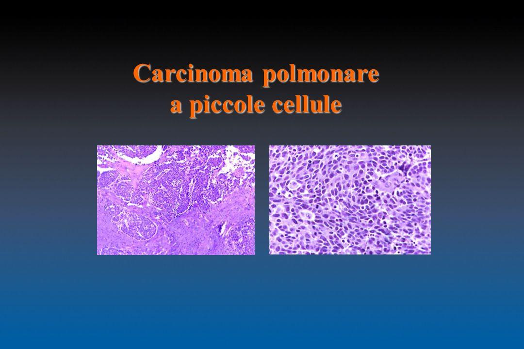 Carcinoma polmonare a piccole cellule