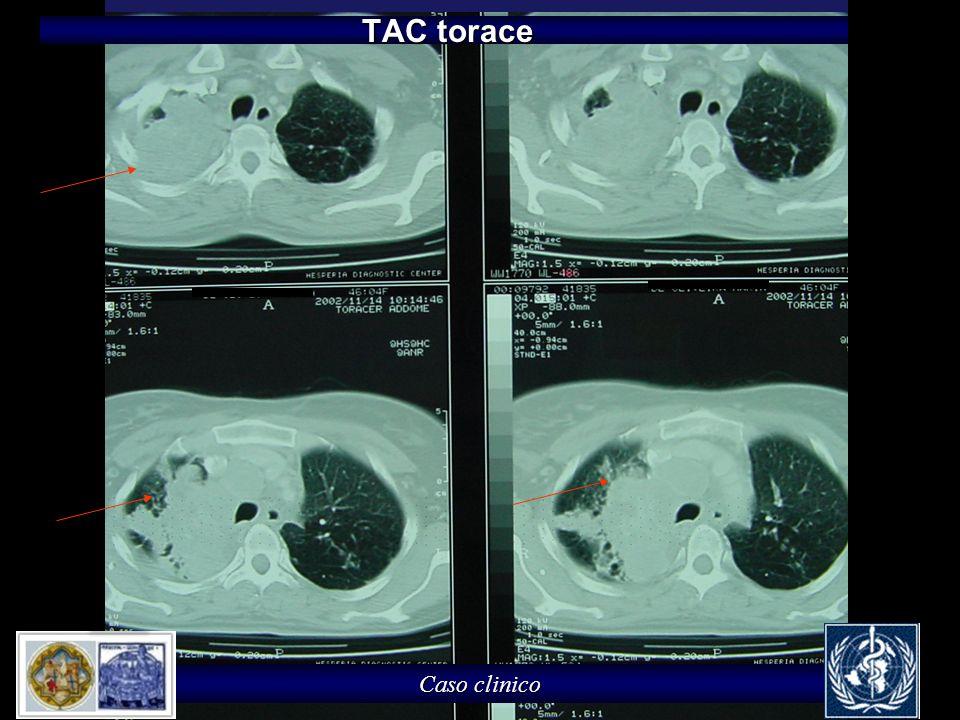 Caso clinico TAC torace