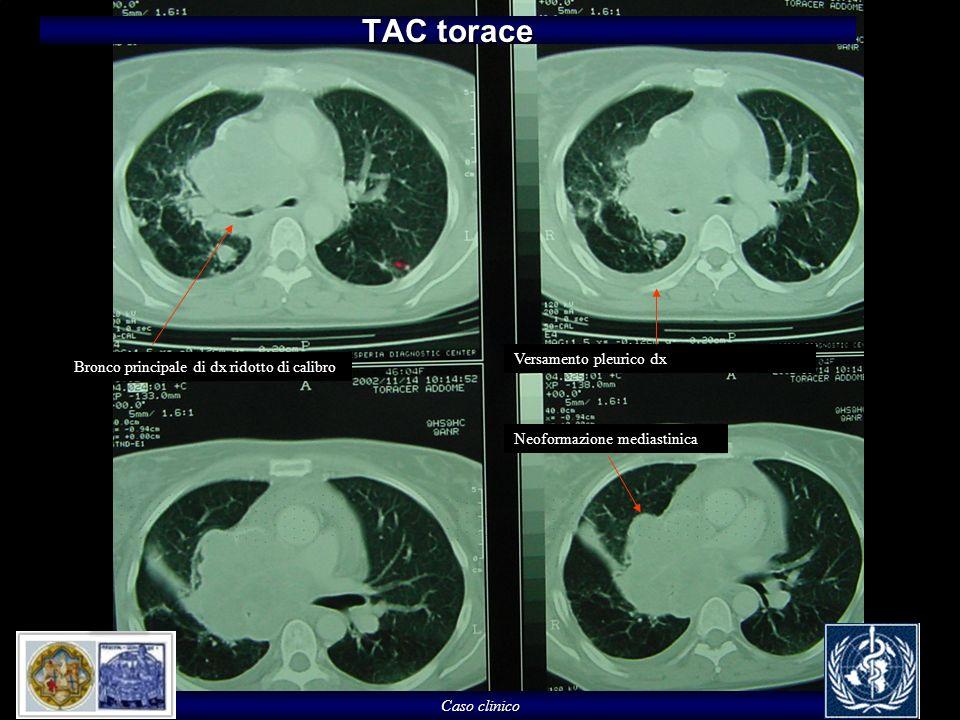 Caso clinico TAC torace Bronco principale di dx ridotto di calibro Neoformazione mediastinica Versamento pleurico dx