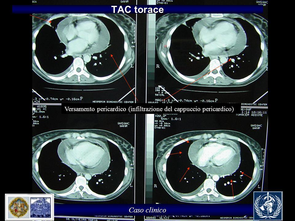 Caso clinico TAC torace Versamento pericardico (infiltrazione del cappuccio pericardico)