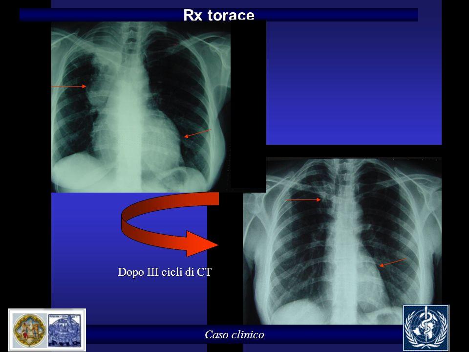Caso clinico Rx torace Dopo III cicli di CT