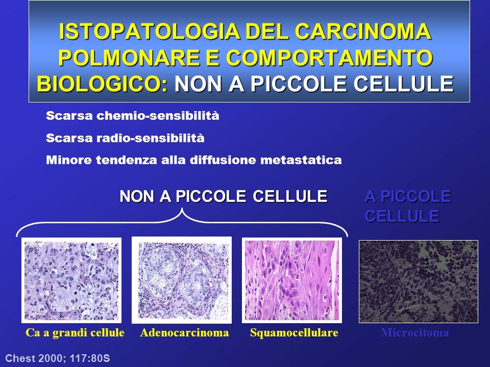 ISTOPATOLOGIA DEL CARCINOMA POLMONARE E COMPORTAMENTO BIOLOGICO: A PICCOLE CELLULE Chest 2000; 117:80S Ca a grandi celluleAdenocarcinomaSquamocellulareMicrocitoma NON A PICCOLE CELLULE A PICCOLE CELLULE Elevata chemio-sensibilità Elevata radio-sensibilità Tendenza alla diffusione metastatica (70% allesordio malattia estesa)