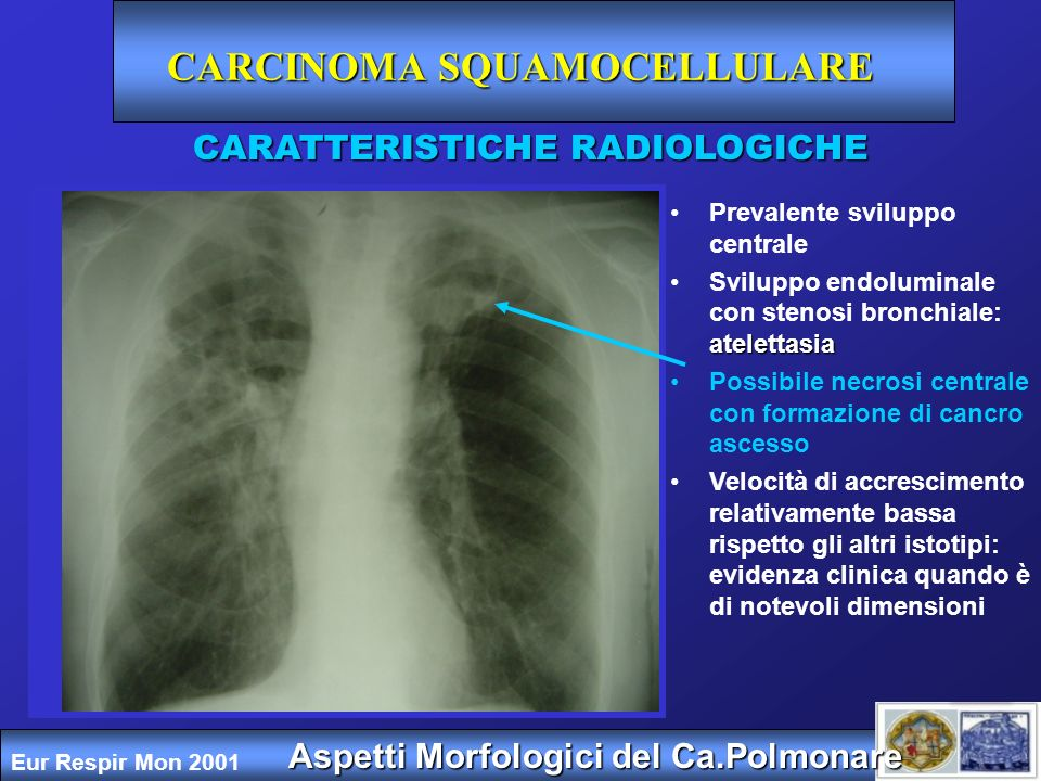 ADENOCARCINOMA Prevalente sviluppo periferico Precoce metastatizzazione (solo il 20% è limitato al torace) Possibili micrometastasi linfonodi Aspetti Morfologici del Ca.Polmonare CARATTERISTICHE RADIOLOGICHE Eur Respir Mon 2001