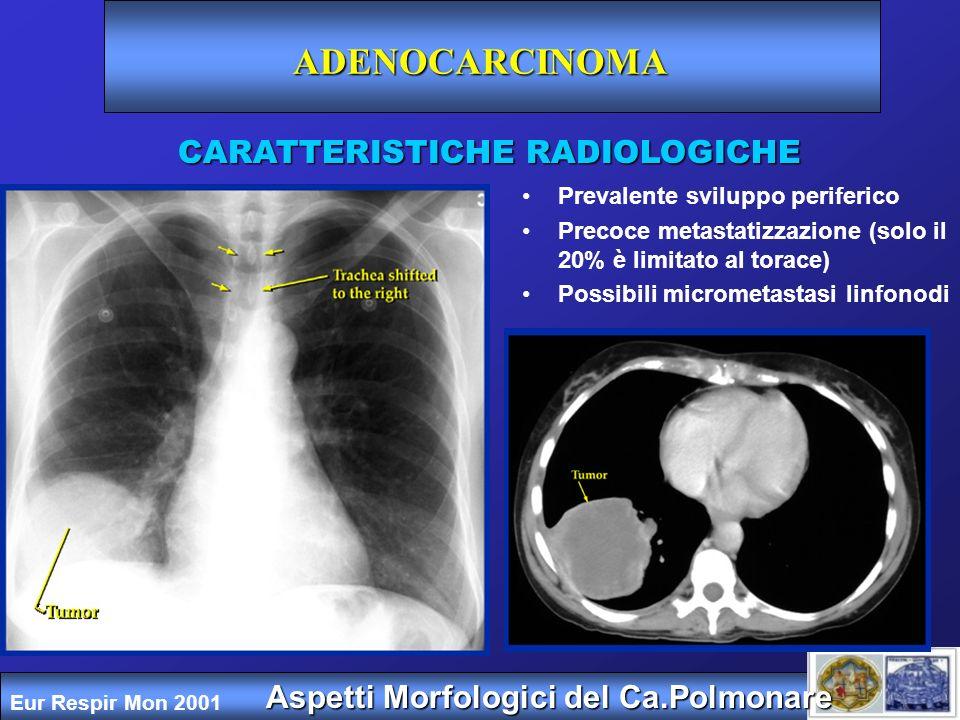 Aspetti Morfologici del Ca.Polmonare CARATTERISTICHE RADIOLOGICHE Adenocarcinoma: bronchioloalveolare Forma multicentrica con interessamento bilaterale diffuso (36%) Nodulo polmonare solitario (41%) Consolidamento parenchimale localizzato (22%) Eur Respir Mon 2001