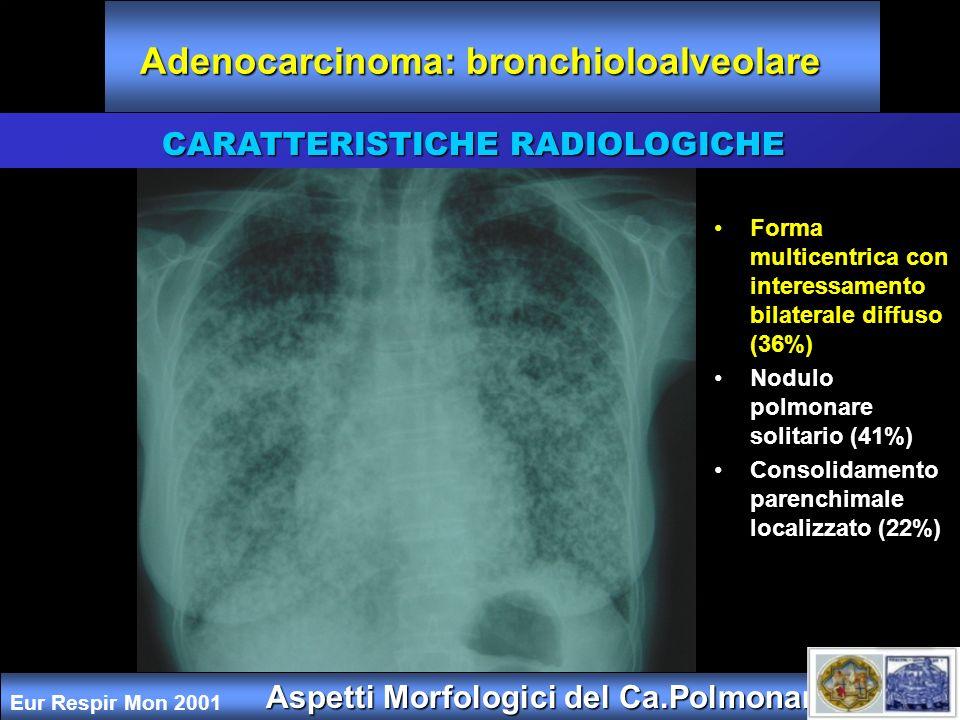 Aspetti Morfologici del Ca.Polmonare CARATTERISTICHE RADIOLOGICHE Adenocarcinoma: bronchioloalveolare Forma multicentrica con interessamento bilateral
