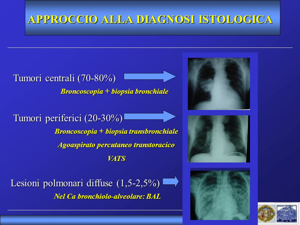 APPROCCIO ALLA DIAGNOSI ISTOLOGICA Tumori centrali (70-80%) Tumori periferici (20-30%) Lesioni polmonari diffuse (1,5-2,5%) Broncoscopia + biopsia bro