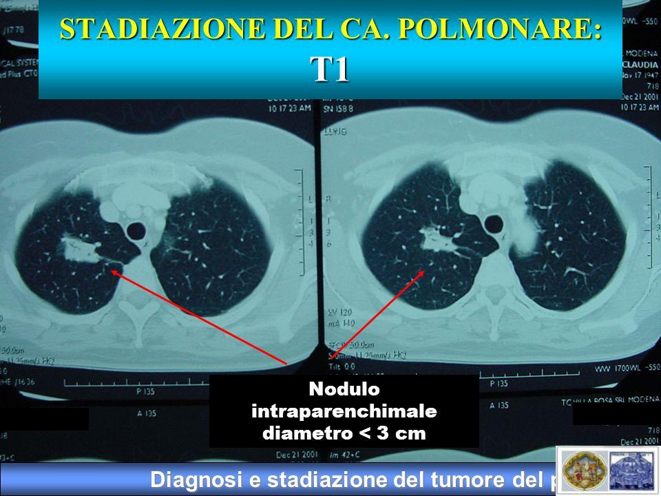 Diagnosi e stadiazione del tumore del polmone Nodulo intraparenchimale diametro < 3 cm STADIAZIONE DEL CA. POLMONARE: T1