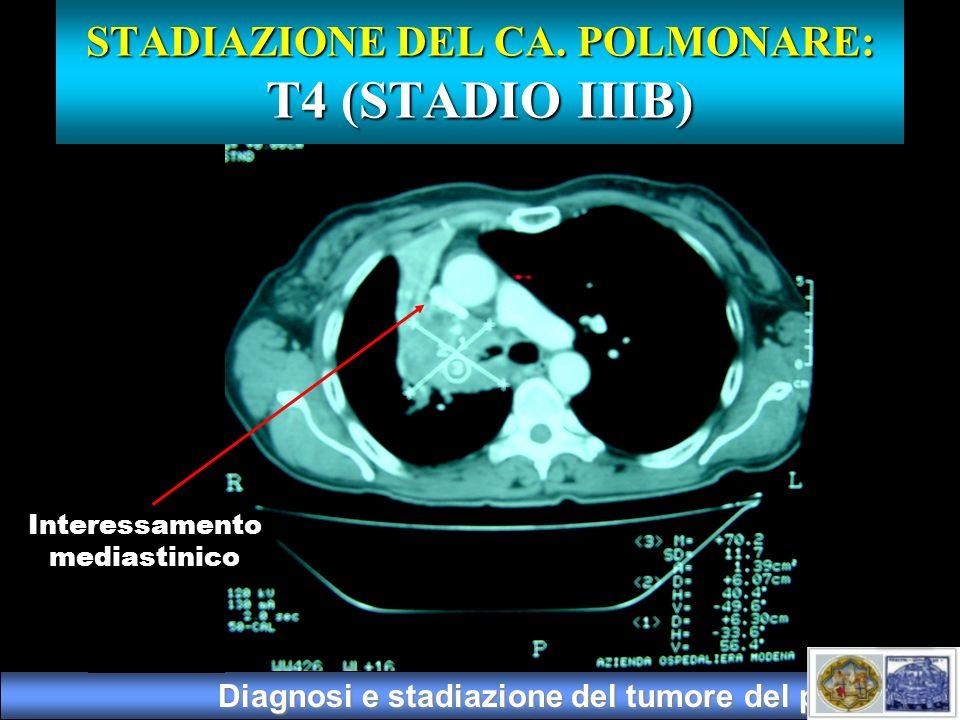 Diagnosi e stadiazione del tumore del polmone Interessamento mediastinico STADIAZIONE DEL CA. POLMONARE: T4 (STADIO IIIB)