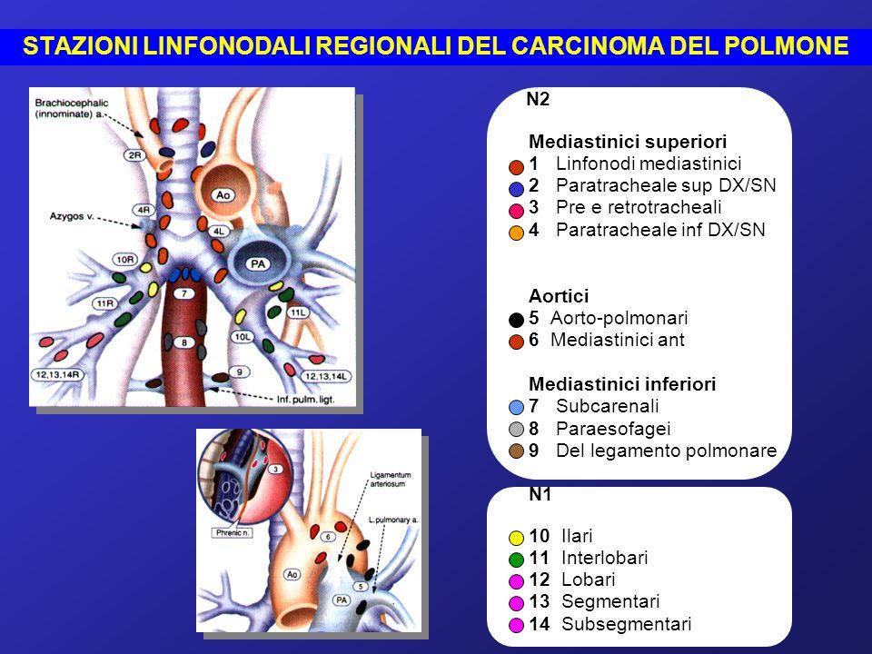 N2 (caratterizza lo stadio III A) Metastasi ai linfonodi mediastinici omolaterali al tumore polmonare (T) Mediastinici superiori (1) Paratracheali superiori (2) Pre e retrotracheali (3) Paratracheali inferiori (4), compresi quelli della vena azygos 1 2 3 4 T