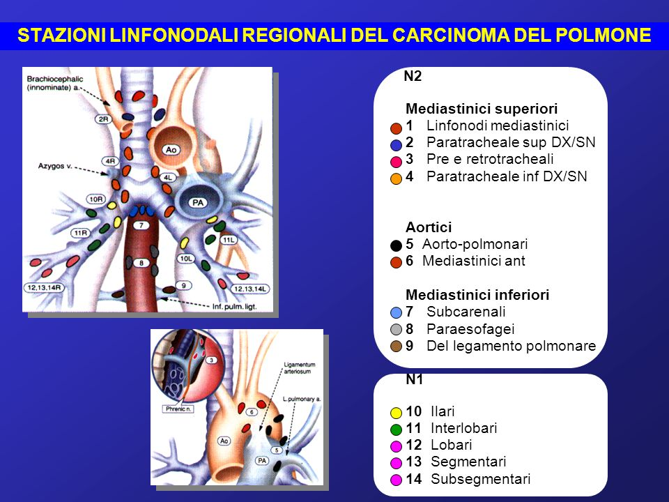 N2 N2 Mediastinici superiori 1 Linfonodi mediastinici 2 Paratracheale sup DX/SN 3 Pre e retrotracheali 4 Paratracheale inf DX/SN Aortici 5 Aorto-polmo