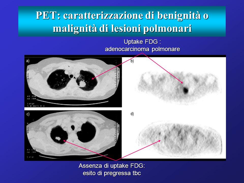 PET: caratterizzazione di benignità o malignità di lesioni polmonari Uptake FDG : adenocarcinoma polmonare Assenza di uptake FDG: esito di pregressa t