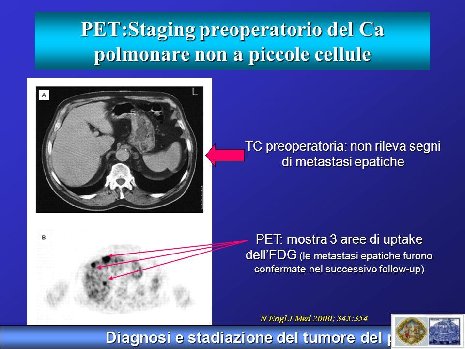 PET:Staging preoperatorio del Ca polmonare non a piccole cellule TC preoperatoria: non rileva segni di metastasi epatiche PET: mostra 3 aree di uptake